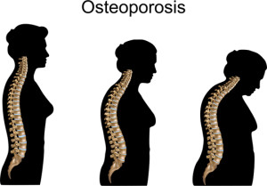 osteoporosis in spine of woman