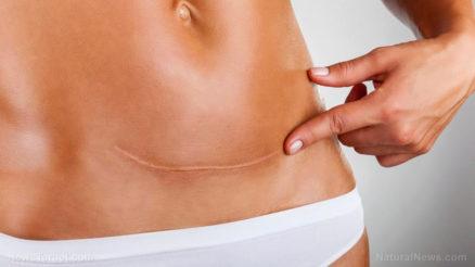 Woman-Scar-Stomach-Pregnancy-Caesarean-Section